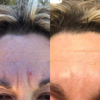 chi-statt-botox-vorher-nacher-bilder